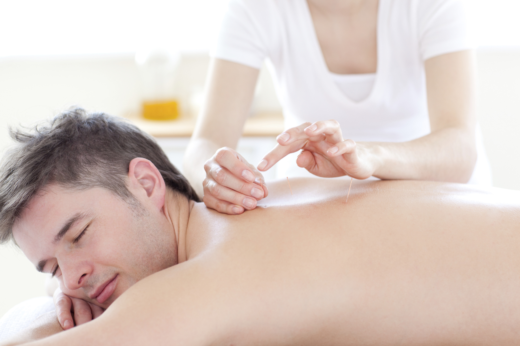 main receiving acupuncture for upper back pain in Staten Island, Brooklyn, and Staten Island