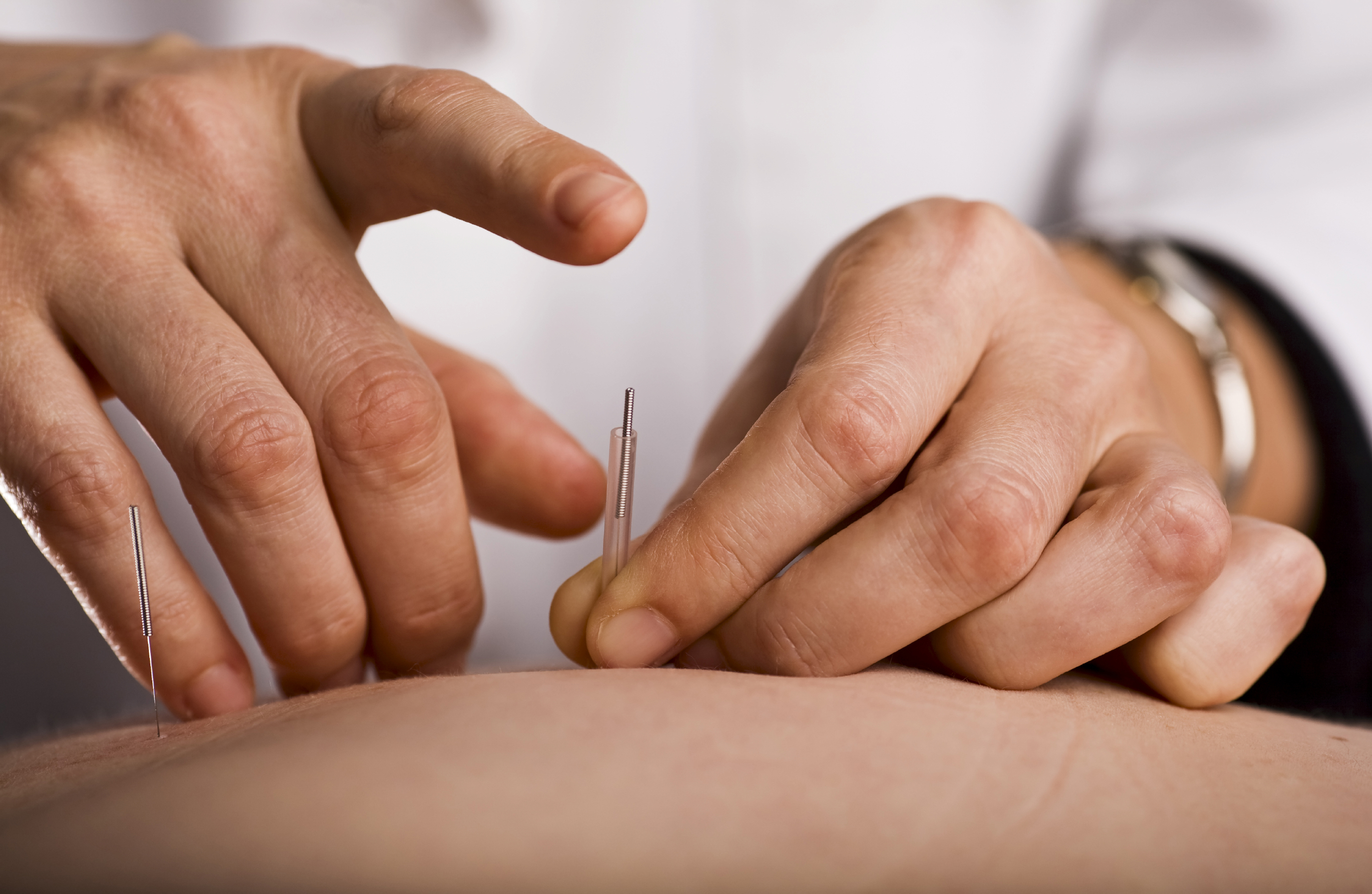 man receiving acupuncture for lower back pain at an acupuncture center in Staten Island