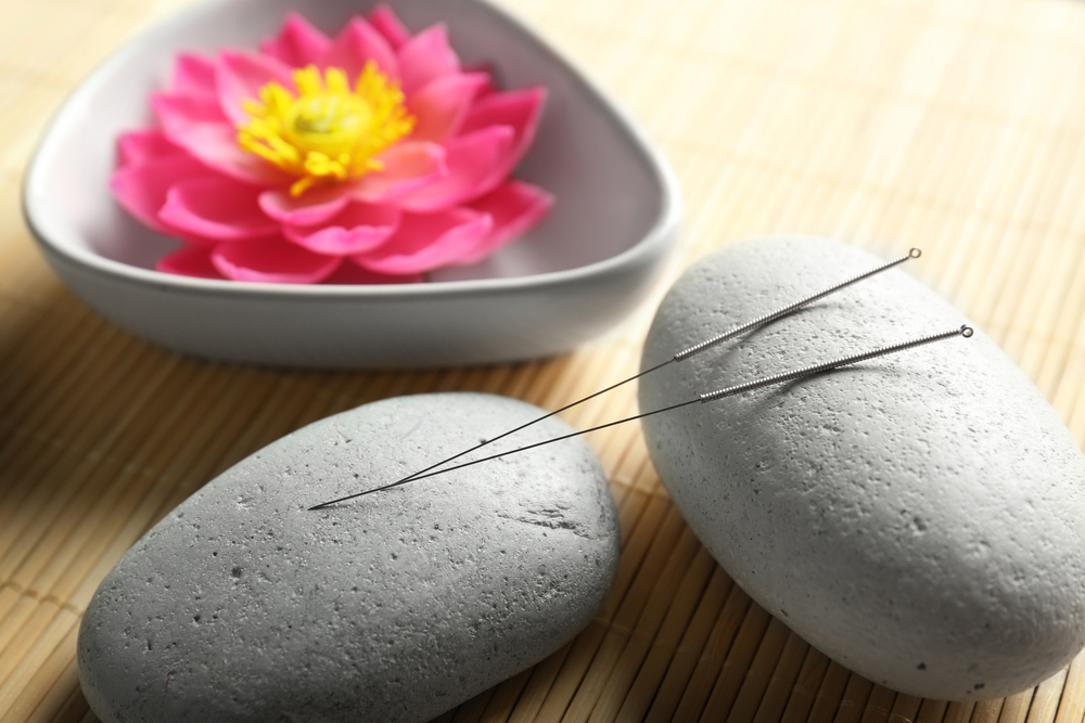 Acupuncture needles on a rock
