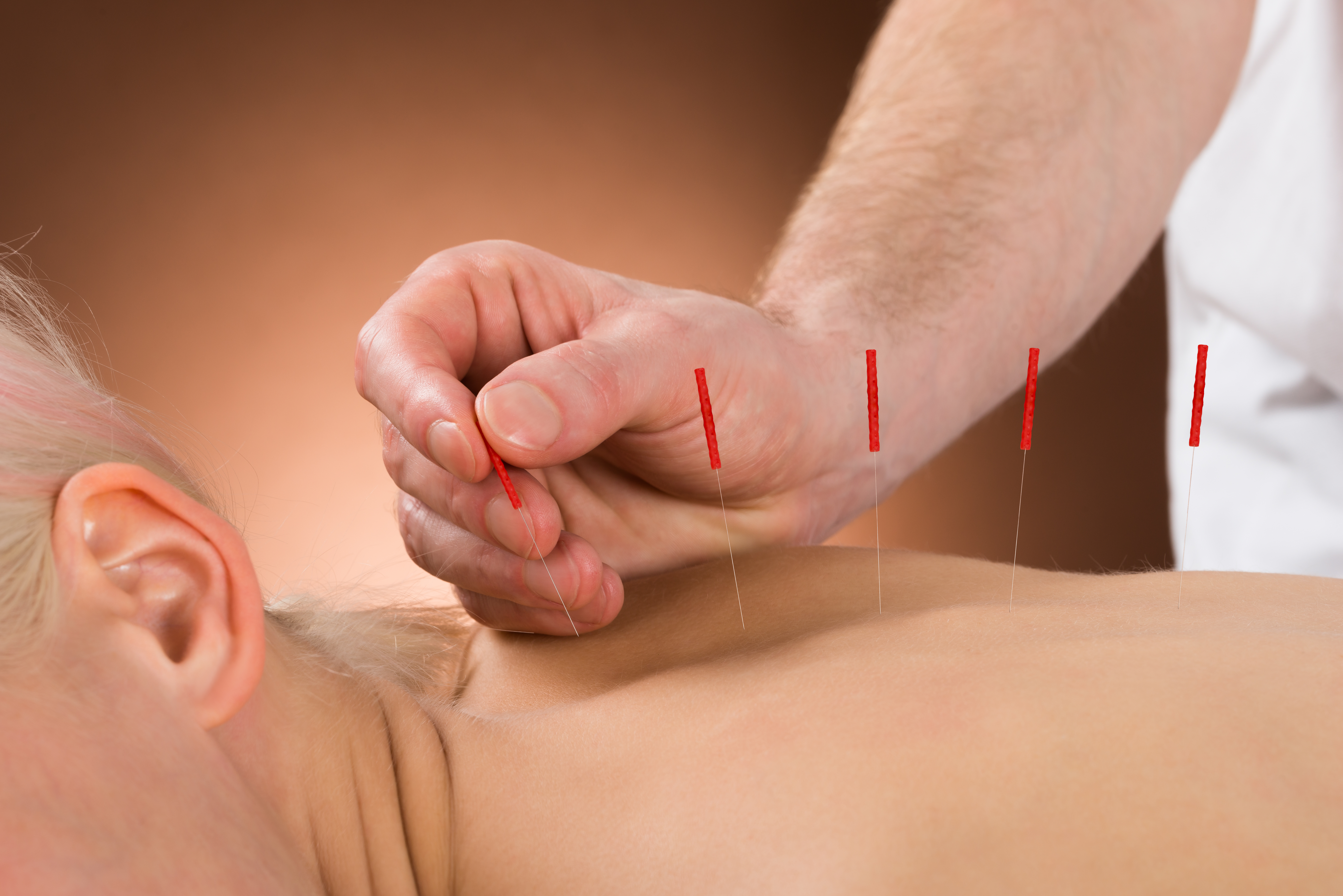 Acupuncturist in New York, Brooklyn, and Staten Island